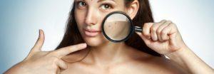 Akne während der Schwangerschaft und Gesichtspflege 2