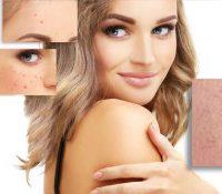 Häufig auftretende Hautveränderungen während der Schwangerschaft 1