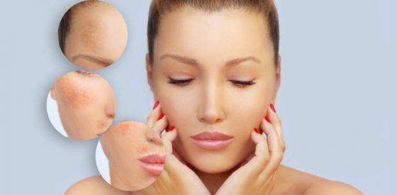 Melasmen und Hautgesundheit während der Schwangerschaft