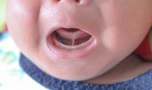 Wie ein angewachsenes Zungenbändchen beim Baby zu verstehen und zu behandeln ist